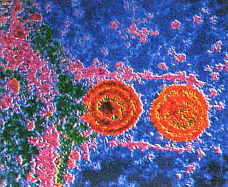 Herpes Simplex Virus. Picture of the Herpes